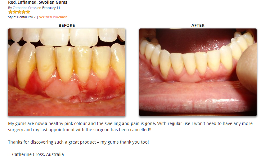 Dental Pro 7 for Red and Inflamed Gum