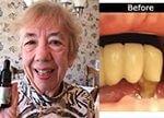 Plaque Problems of Dental Pro 7